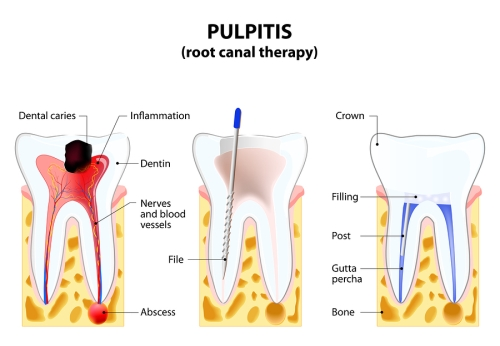 root - canal